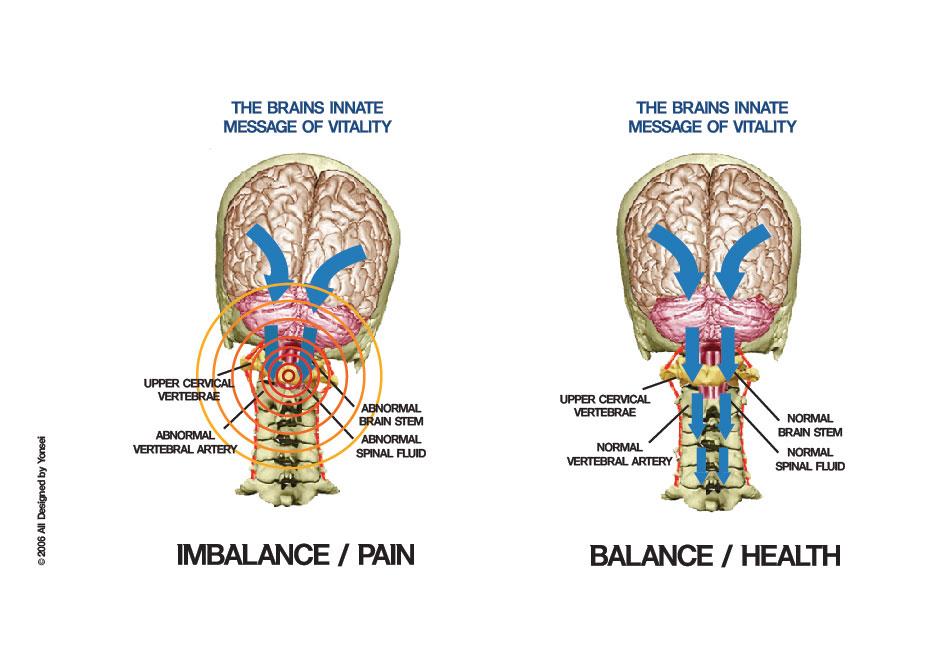 imbalance_balance